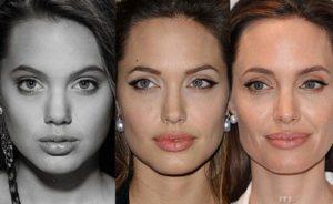 Изменение лица Джоли