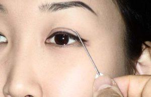 Азиатка перед операцией на глаза