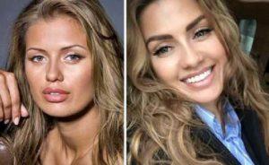 До и после пластики ведущая Боня