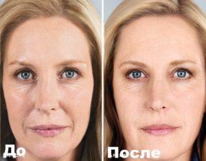 Фото пациента до и после мезотерапии