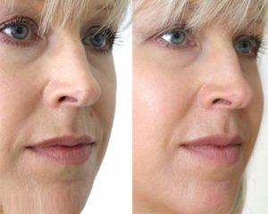 Фото 2 пациента до и после процедуры