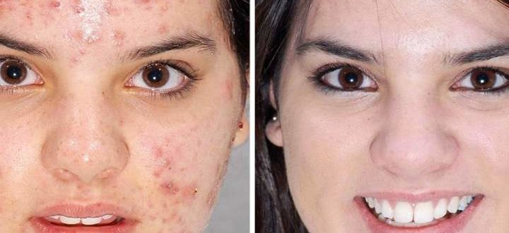 Фото 1 пациента до и после процедуры
