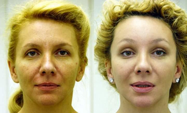 фото подтяжка лба фото до и после лишь десяток
