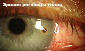 Коррекция зрения. Риски