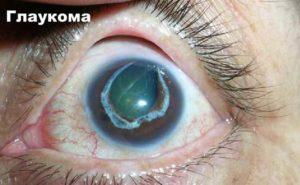 Коррекция зрения при глаукоме