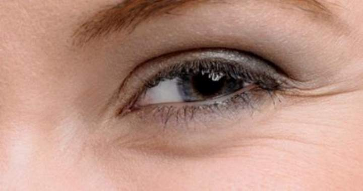 Как убрать глубокие мимические морщины вокруг глаз