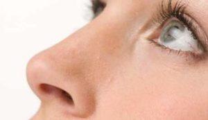Красивый нос после сложной остеотомии