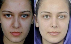 До и после остеотомии носа
