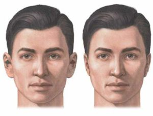 Рисунок человека с нормальными ушами и оттопыренными