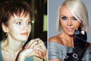До и после пластики Валерии