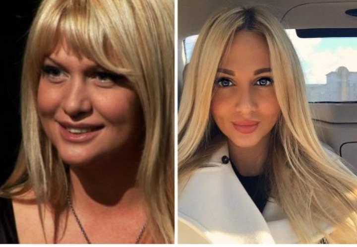 До и после пластики Виктории Лопыревой