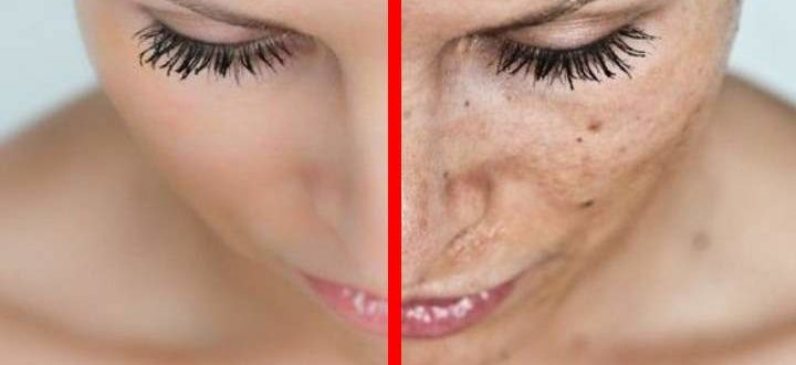 До и после пятен на лице