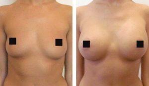 как увеличить грудь собственным жиром