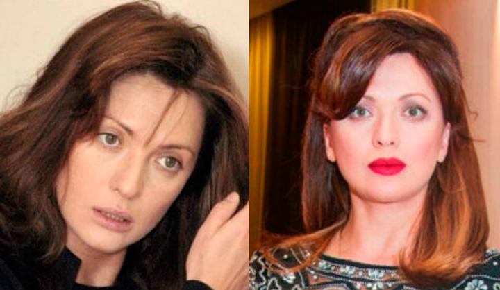 Ольга Дроздова после пластических операций