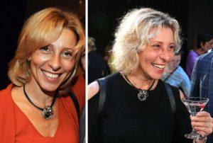 До и после пластики Юлии Рутберг