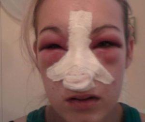 После ринопластики нос в бинтах