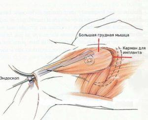 Разрез для грудного доступа