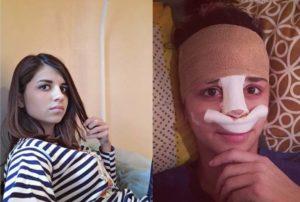 Алиана после операции