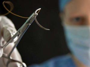 Хирург шьет рану