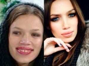 До и после пластики. И.Шевчук