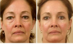 Фото до и после операции на веках