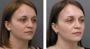 Фото до и после изменения носа