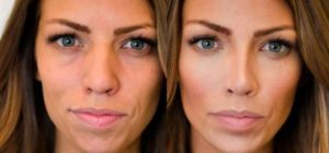 До и после ринопластики широкого носа