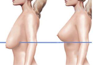 Опущение груди