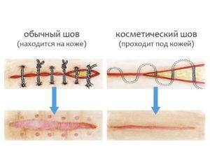 Два шва хирургии
