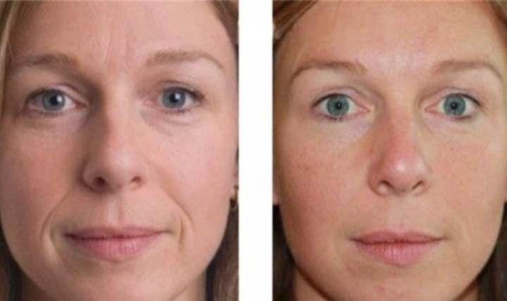 До и после изменения лица