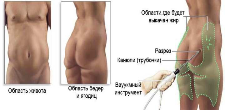 Метод РЧЛ