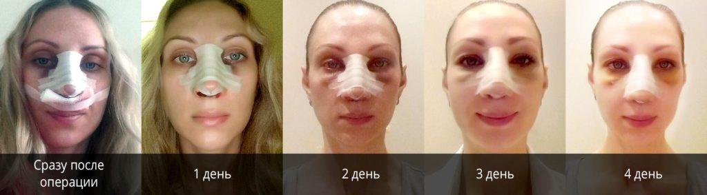 фото до и после ринопластики по дням
