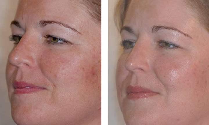 До и после криотерапии лица