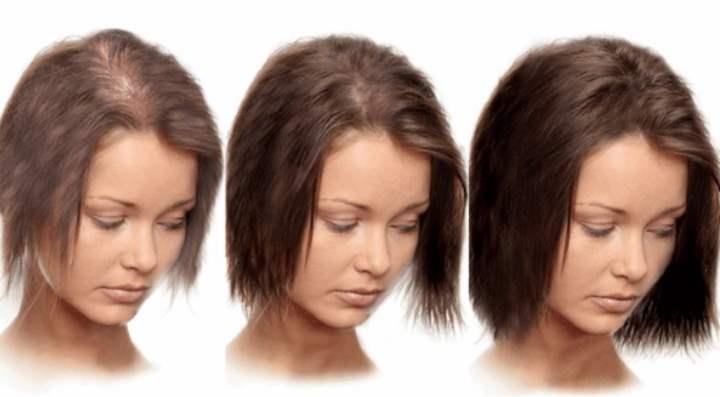 Увеличение волос