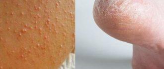 Проблемы с кожей на стопах