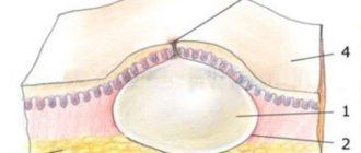 Кроме жировой ткани, на образование наслаиваются мышечные волокна
