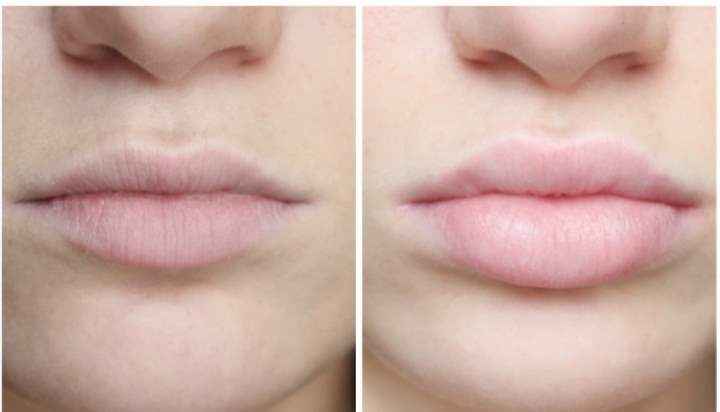 Фото губ после процедуры