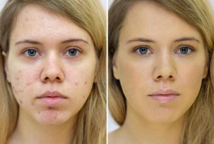 До и после фототерапии