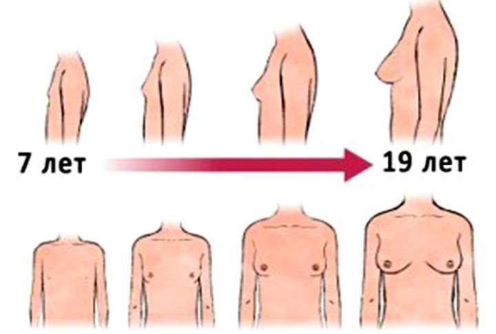 Как меняется грудь у подростков
