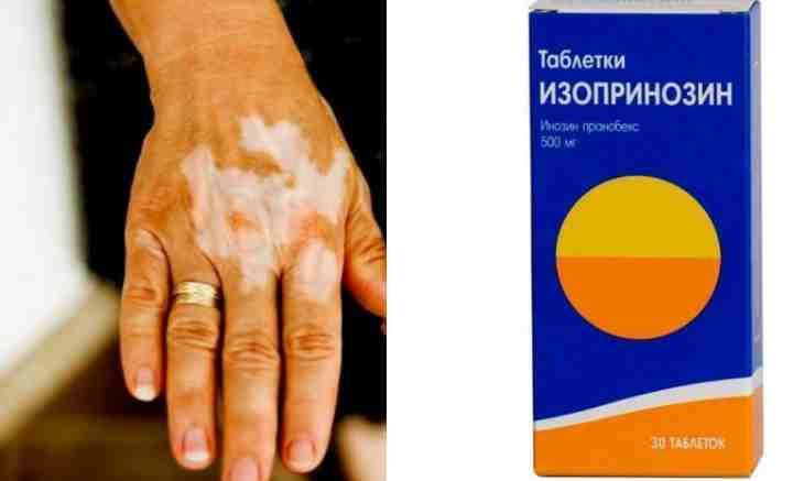 лекарство от пятен на руках