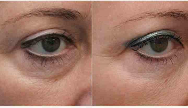 До и после мезо глаз