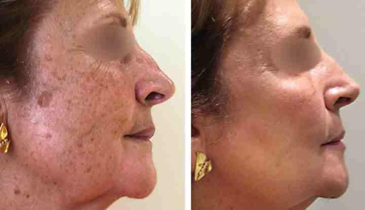 Лицо до и после лазера