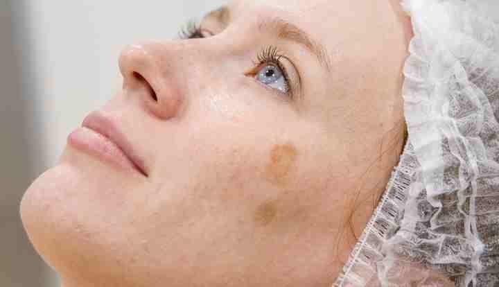 Пятно пигмента на щеке