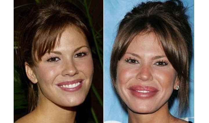 Фото знаменитостей до и после иногда просто ужасают