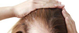- постоянное использование плойки, фена, утюжка, окраска волос, термобигуди;