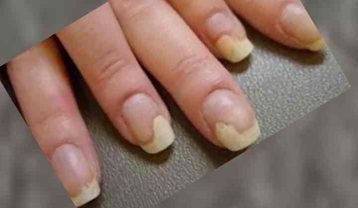 неправильный косметологический уход за ногтевыми пластинами