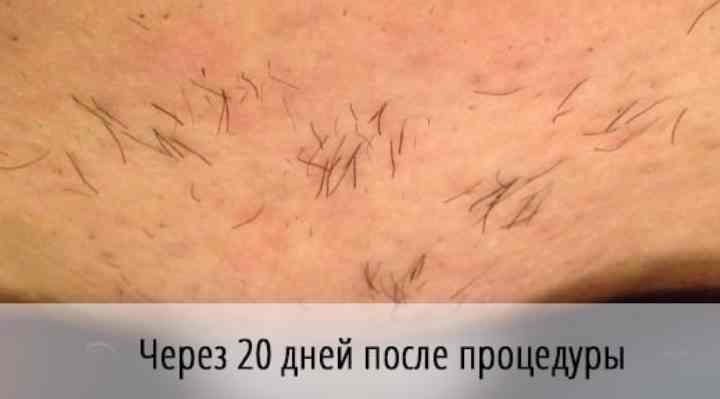 - неимение нарушений целостности кожной поверхности;