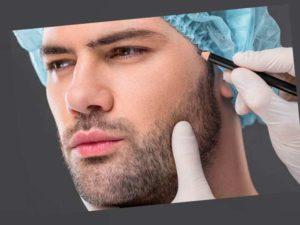 Бороду можно легко и быстро пересадить всего за одну минуту.