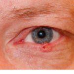 Синдром Марфана. При этом заболевании происходит поражение ткани потовых желез, что является толчком к росту числа сирингом.