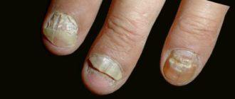 - Онихомикоз в разных своих проявлениях (грибок ногтей).
